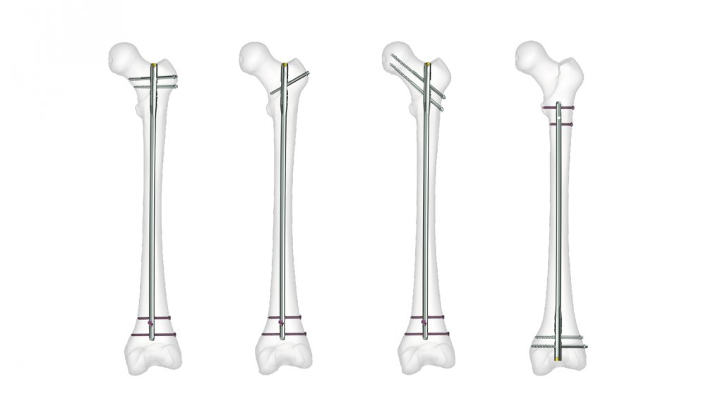 FIN - Femur Intramedullary Nail | Product | Products | Tst Tibbi ...
