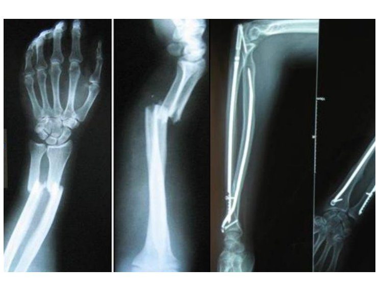 Ulna Intramedullary Nail | Product | Products | Tst Tibbi Aletler ...